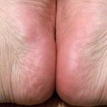 Tech&Pro Pedi Perfect Electronic Pedicure Foot File
